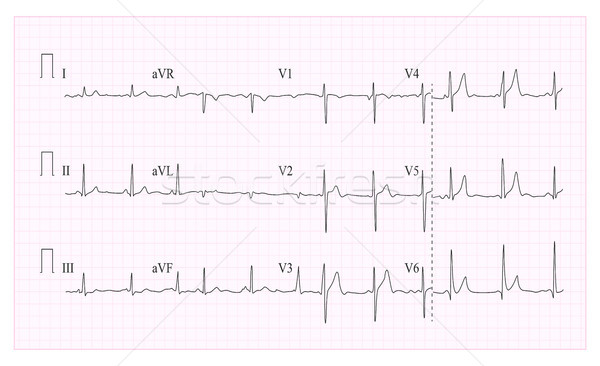 Heart Cardiogram Chart Vector. Illustration Of Wave Form On Checked Ecg Graph. Heart Rhythm, Ischemi Stock photo © pikepicture