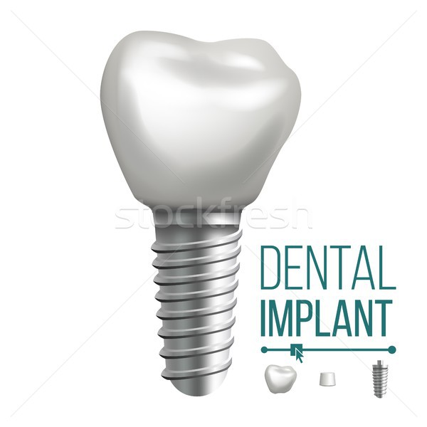 Dental Implant Vector. Molar Human Teeth. Dental Clinic Stomatology Flyer. Realistic Isolated Illust Stock photo © pikepicture