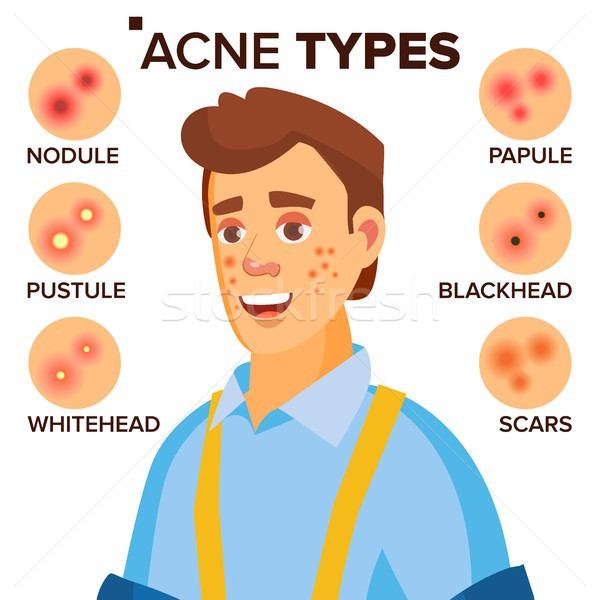 Acne Types Vector. Man With Acne. Facial Skin Problems. Papule, Pustulem Scards. Isolated Flat Carto Stock photo © pikepicture