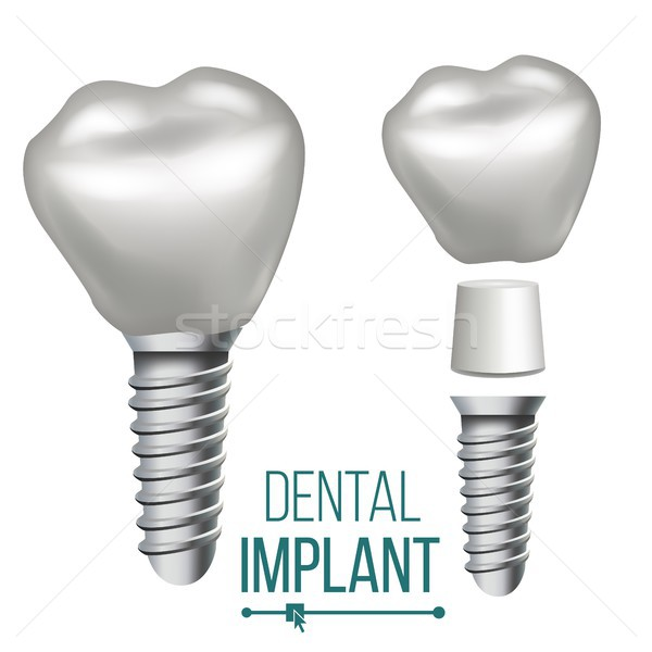 Dental Implant Vector. Medical Poster, Banner Design Element. Stomatology Dentist Advertisement. Rea Stock photo © pikepicture