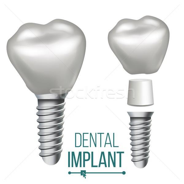 Stomatologicznych implant wektora medycznych plakat banner Zdjęcia stock © pikepicture