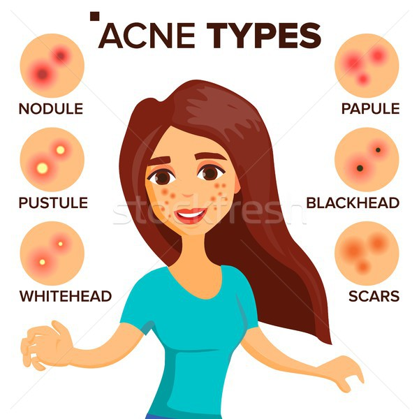 Acne Types Vector. Girl With Acne. Skin Care. Treatment, Healthy. Nodule, Whitehead. Isolated Flat C Stock photo © pikepicture