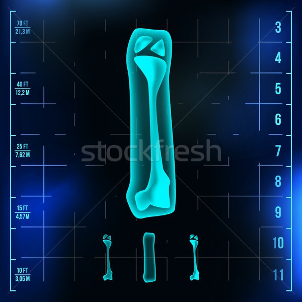 I Letter Vector. Capital Digit. Roentgen X-ray Font Light Sign. Medical Radiology Neon Scan Effect.  Stock photo © pikepicture