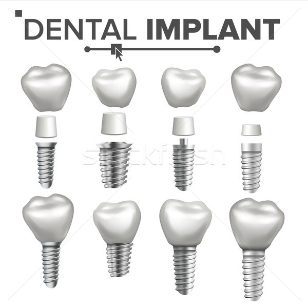 Dental Implant Set Vector. Dental Clinic Stomatology Flyer. Health Tooth Implant. Realistic Isolated Stock photo © pikepicture