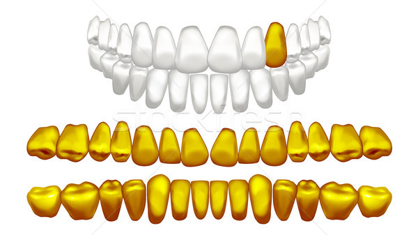 Gold Tooth Vector. Metal Golden Human Teeth. Old Pirate. Realistic Isolated Illustration Stock photo © pikepicture