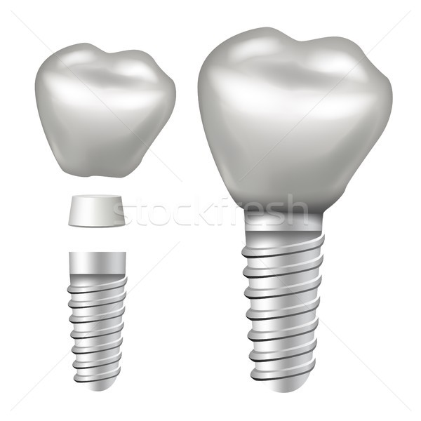 Dental Implant Vector. Implant Structure. Crown, Abutment, Screw. Realistic Isolated Illustration Stock photo © pikepicture