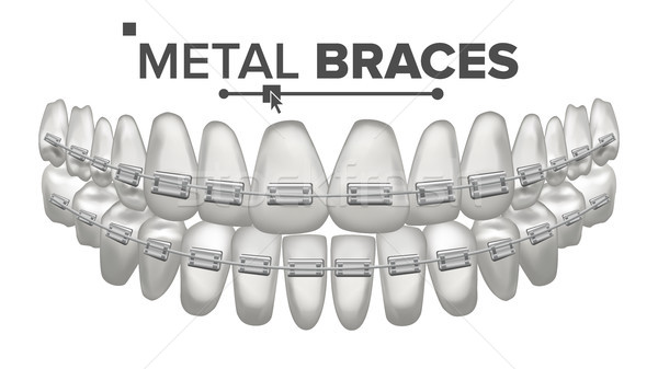 Fém fogszabályozó vektor emberi állkapocs fogas mosoly Stock fotó © pikepicture