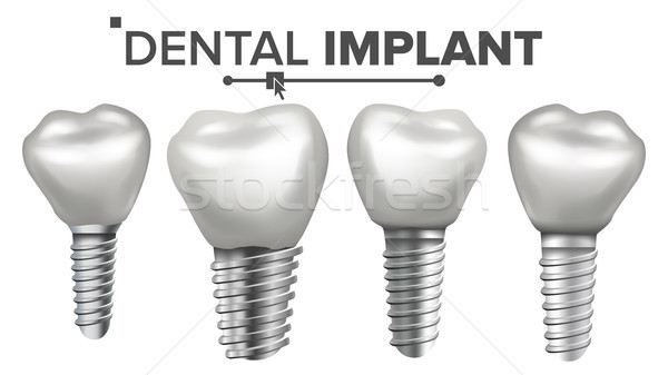 Dental Implant Set Vector. Implant Structure. Crown, Abutment, Screw. Care, Stomatology. Realistic I Stock photo © pikepicture