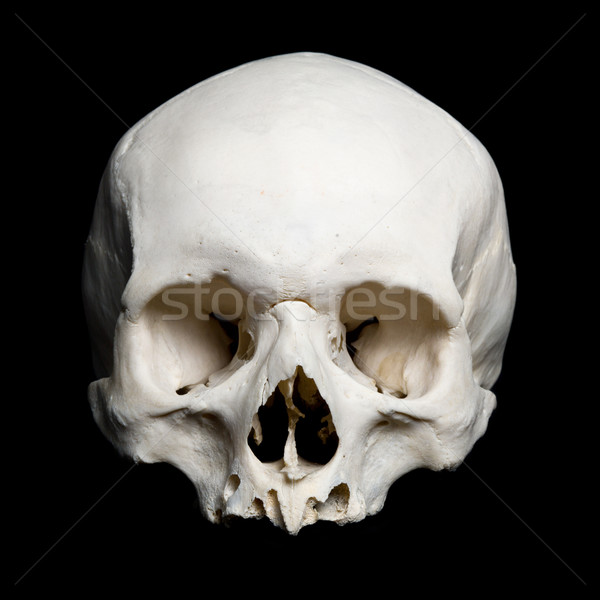 Upper half of the real human Skull Stock photo © Pilgrimego