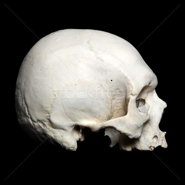 Foto stock: Metade · real · humanismo · crânio · preto · cara
