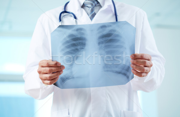 Doctor with x-ray Stock photo © pressmaster