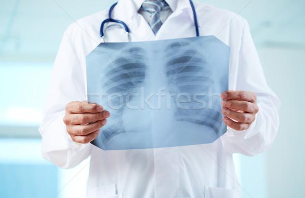 Arts Xray medische geneeskunde Stockfoto © pressmaster