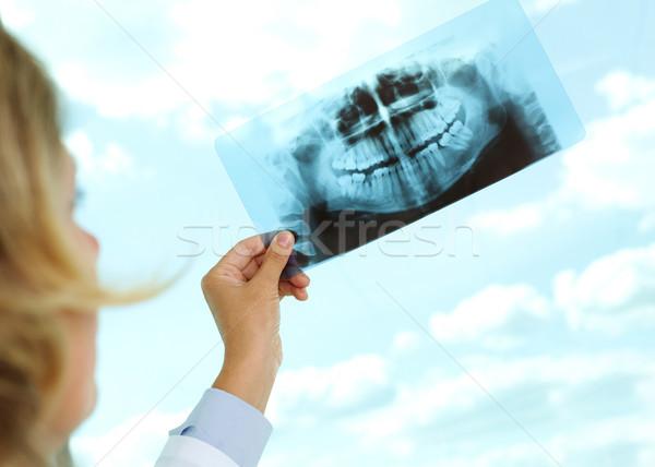 Bakıyor xray görüntü kadın doktor Stok fotoğraf © pressmaster