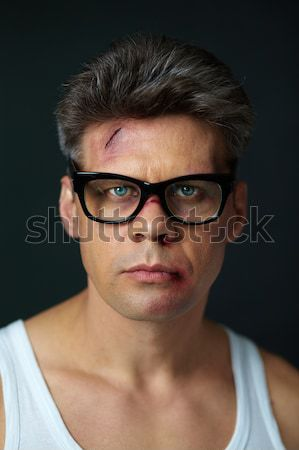After fight Stock photo © pressmaster