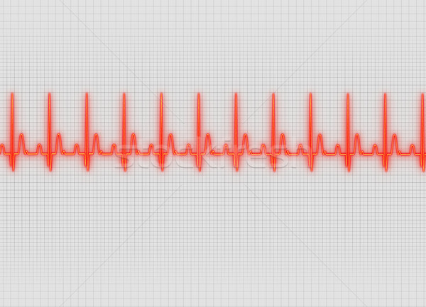 Electrocardiography Stock photo © prill