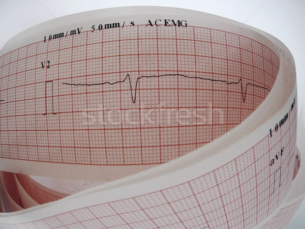Close up of an electrocardiogram analysing for heart disease problem. Stock photo © Pruser