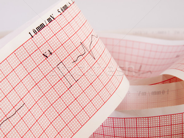 Electrocardiogram analysing for heart disease problem. Stock photo © Pruser