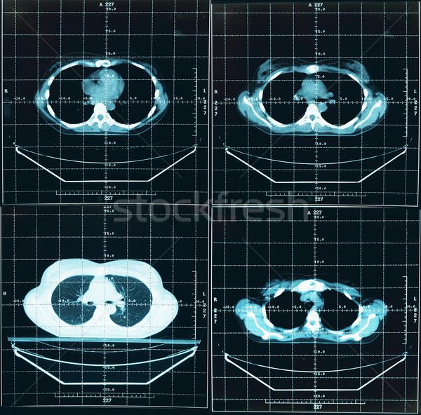 Tomography of human thorax Stock photo © pzaxe