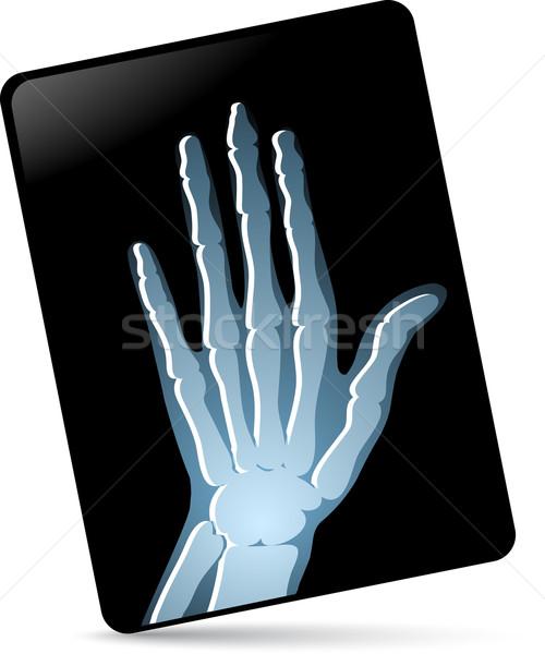 Xray insan eli tıbbi sağlık tıp mavi Stok fotoğraf © radoma