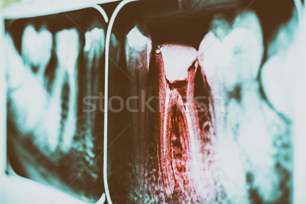 Pain Of Tooth Decay On Teeth X-Ray Stock photo © radub85