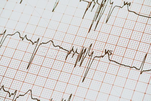 Extrasystoles On Electrocardiogram Stock photo © radub85