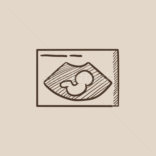Fetal ultrasound sketch icon. Stock photo © RAStudio