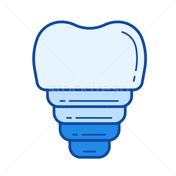 Tandheelkundige implantaat lijn icon vector geïsoleerd Stockfoto © RAStudio