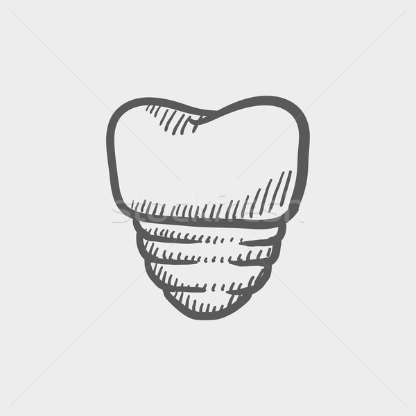 Tooth implant sketch icon Stock photo © RAStudio