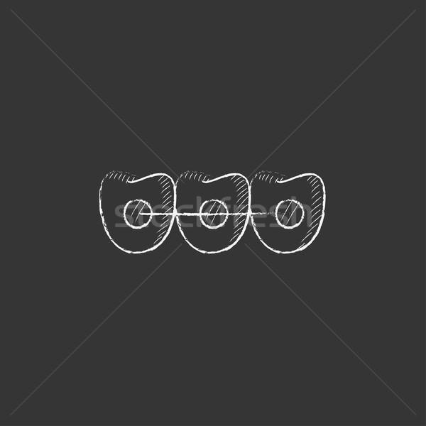 歯列矯正の ブレース チョーク アイコン 手描き ストックフォト © RAStudio