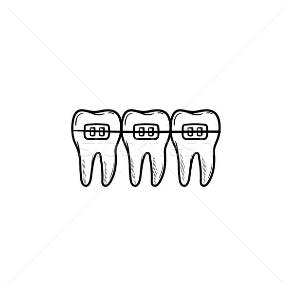 Dental braces hand drawn outline doodle icon. Stock photo © RAStudio