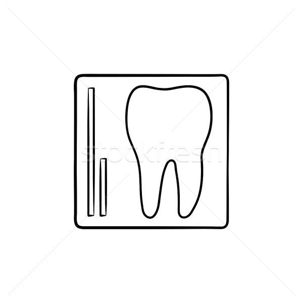 Foto stock: Dente · raio · x · rabisco · ícone