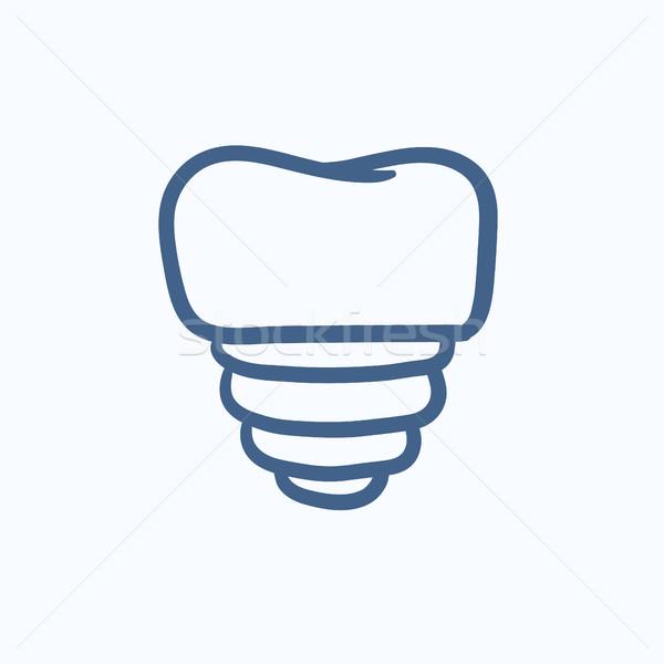 Diente implante boceto icono vector aislado Foto stock © RAStudio