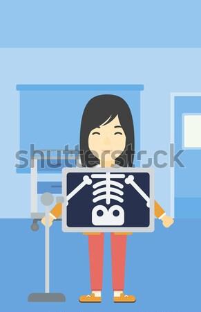 Paciente radiografía Asia pecho Foto stock © RAStudio