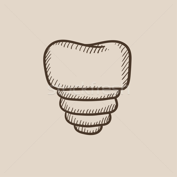 Tooth implant sketch icon. Stock photo © RAStudio