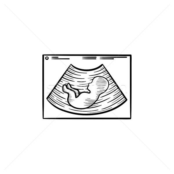 Baby silhouette on ultrasound hand drawn outline doodle icon. Stock photo © RAStudio
