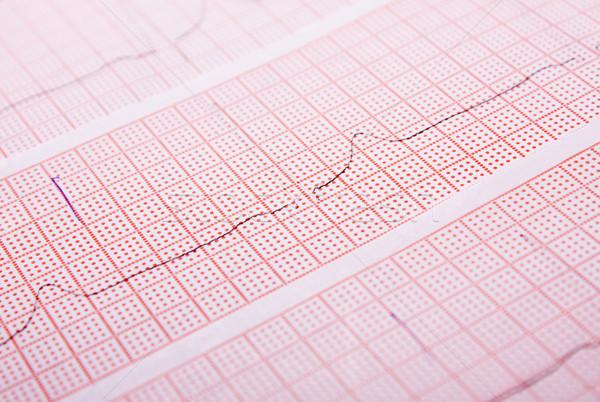 The cardiogram Stock photo © restyler