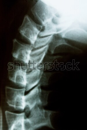 Neck X-ray Stock photo © restyler