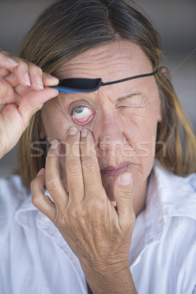Stock photo: Injured matur woman lifting eye patch portrait