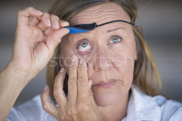 Stock photo: Injured matur woman lifting protective eye patch