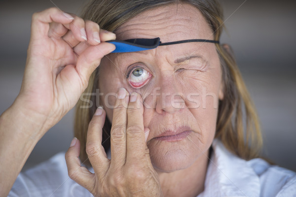 Injured matur woman lifting eye patch Stock photo © roboriginal