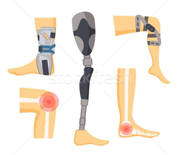 Dolor articulaciones ortopédico piernas colorido blanco Foto stock © robuart
