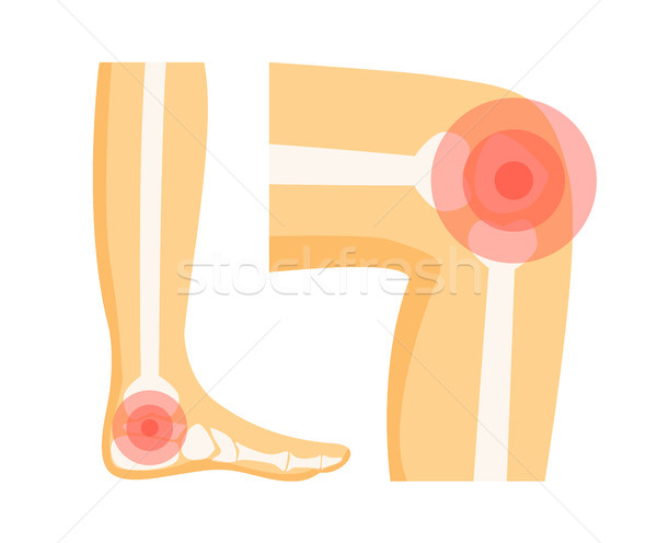 Orthopedic Problems in Foot Vector Illustration Stock photo © robuart