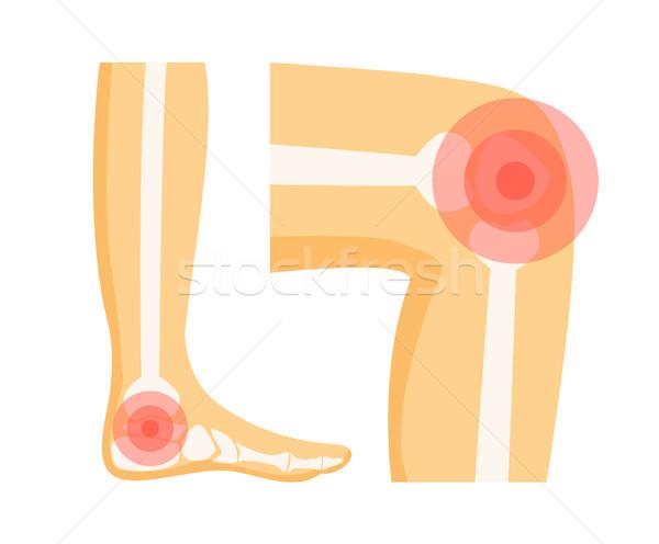 Ortopéd problémák láb térd segítség piros Stock fotó © robuart
