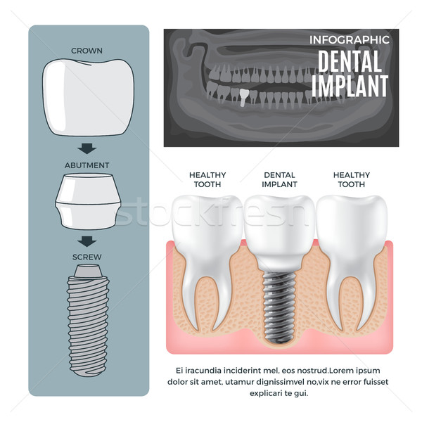Infographic Dental Implant Structure Info Poster Stock photo © robuart