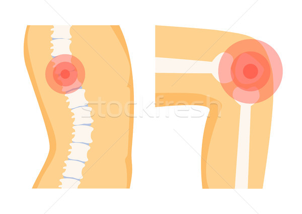 Spine Orthopedic Pain Set, Vector Illustration Stock photo © robuart