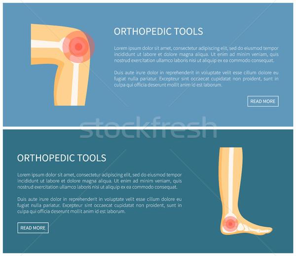 Ortopéd szerszámok orvosi kép izolált kék Stock fotó © robuart