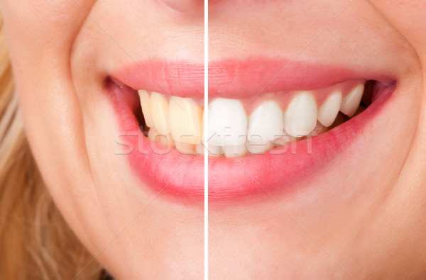 Dental Whitening Stock photo © ruigsantos
