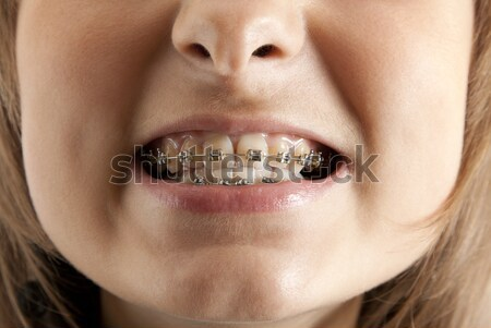 Girl smiles with bracket on teeth Stock photo © RuslanOmega