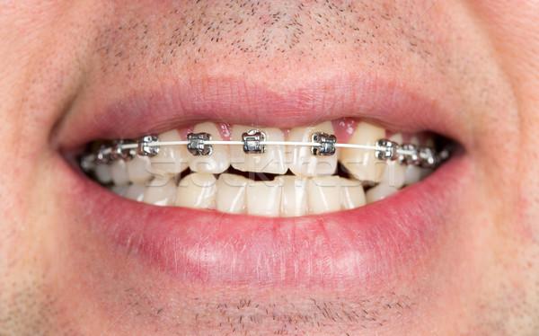 Mosoly fogszabályozó fogak közelkép állkapocs arc Stock fotó © RuslanOmega