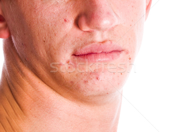 Acne Face Stock photo © sapegina
